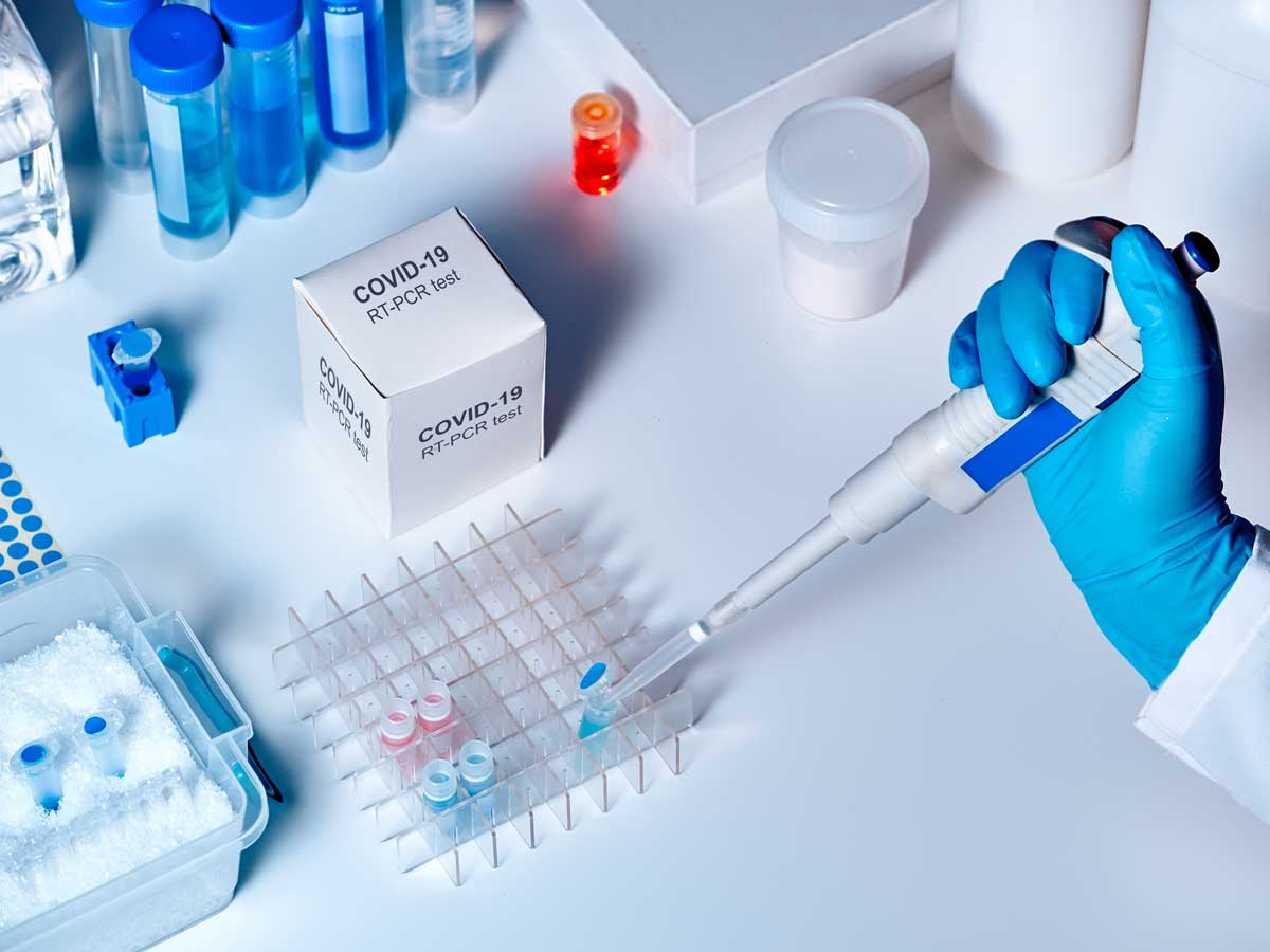 Covid-19 in Delhi: 3.7 lakh surveyed, first time RT-PCR tests more than antigen tests