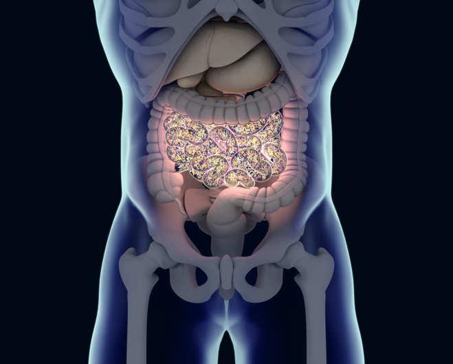 Researchers demonstrate new method to treat Crohn's disease