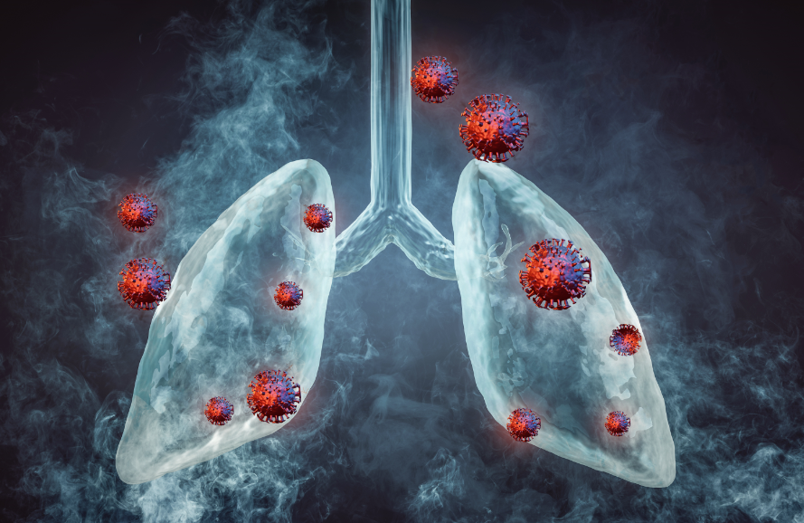 Roche aims Tecentriq at early lung cancer after data shows benefit