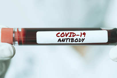 antibodies detectable up to 7 months after covid infection number depends on severity of disease