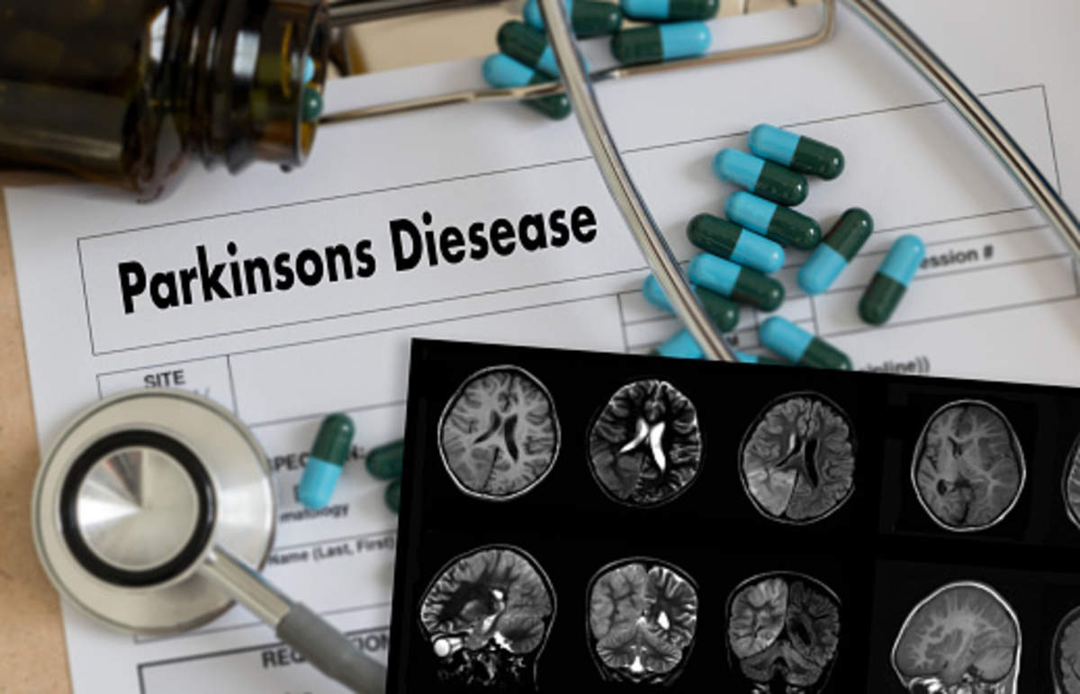 Parkinson's disease: Turning the corner: Managing Parkinson's with ...
