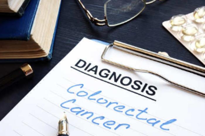 Colorectal Cancer Risk Remains Despite Modern Treatment For Ulcerative Colitis Study Health News Et Healthworld